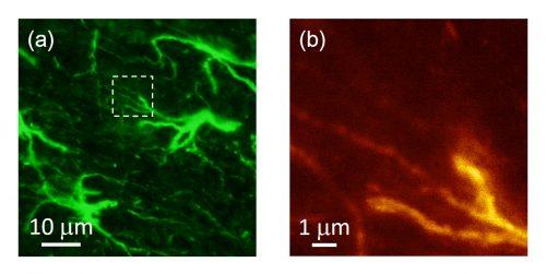 ナノを光で見る ~顕微鏡のその先へ~